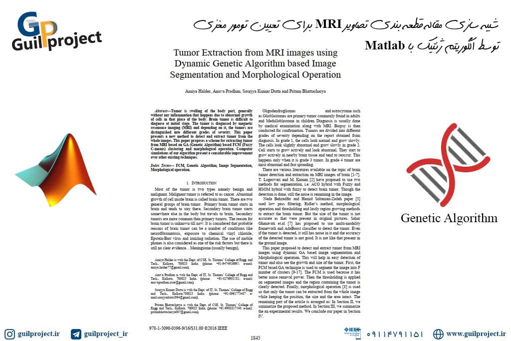 شبیه سازی مقاله قطعه بندی تصاویر MRI برای تعیین تومور مغزی توسط الگوریتم ژنتیک با Matlab
